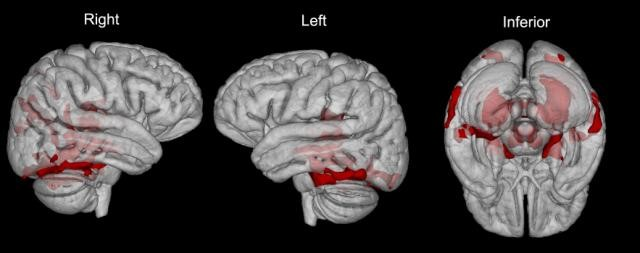 Regions in red show areas of neuronal loss in NPC