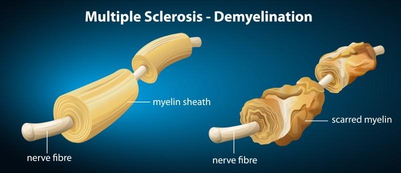 Multiple sclerosis - Demyelination