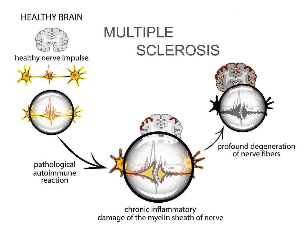 rsz_pathogenesis_of_ms
