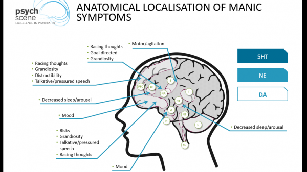 Mania in the brain_resized