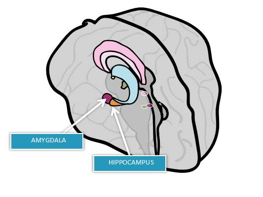 Lithium increases Hippocampi and Amygdala volumes