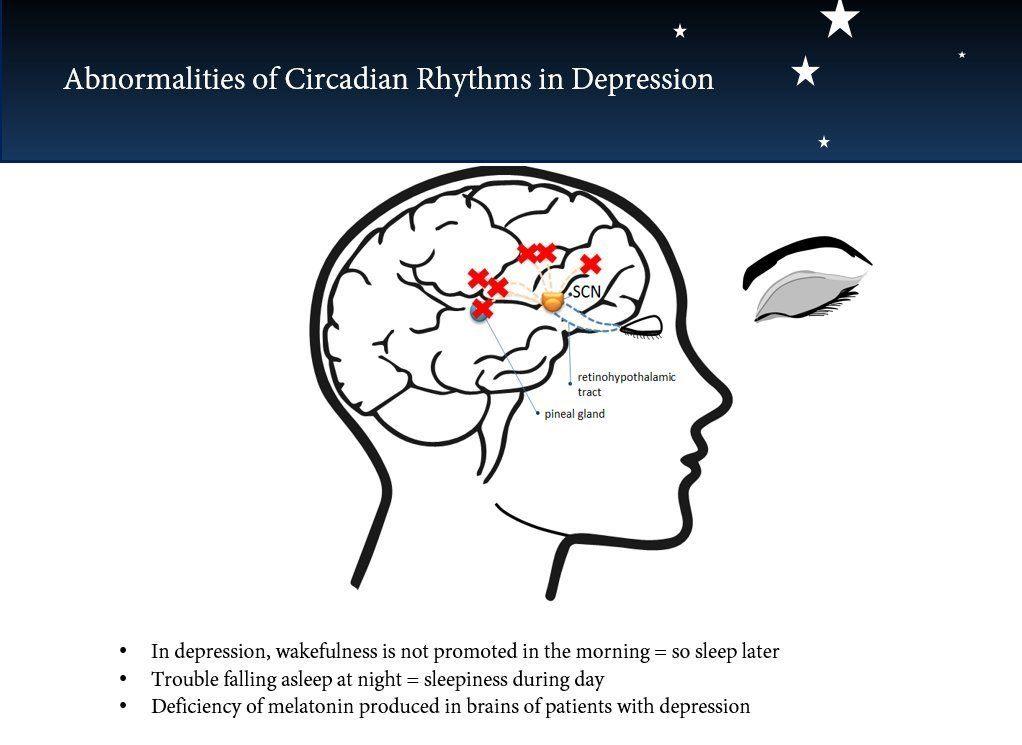 Abnormalities of Circadian Rhythm in depression