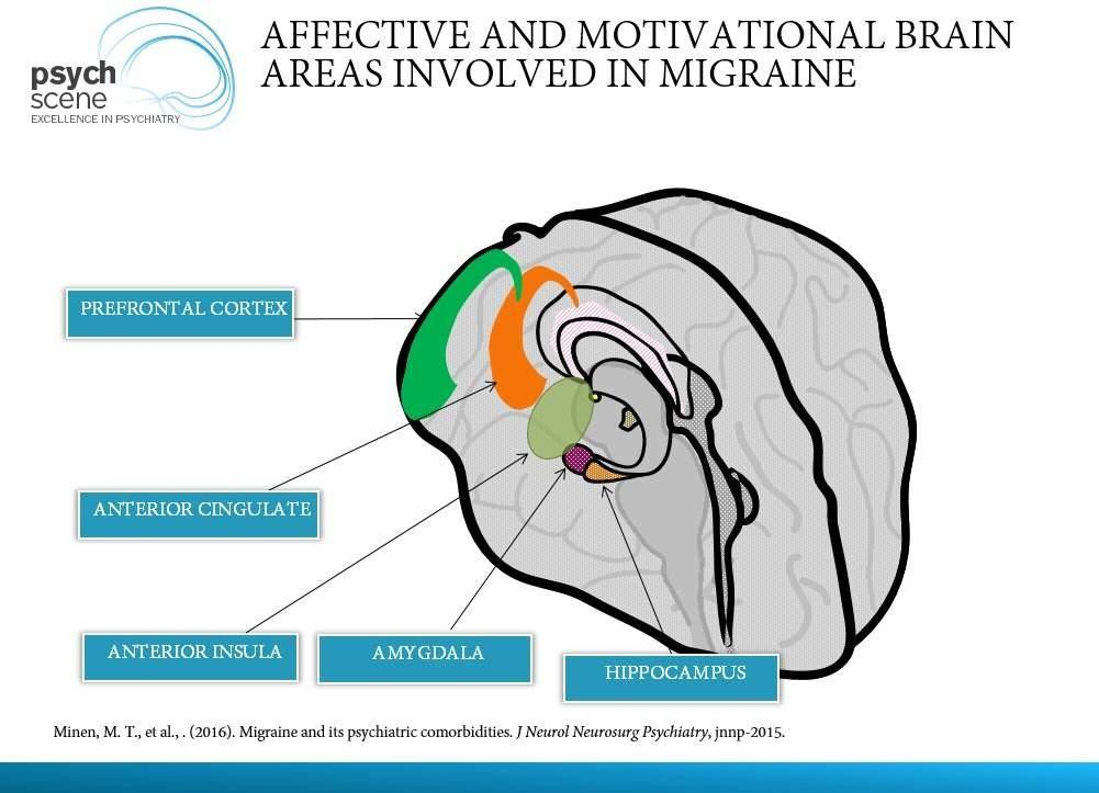 Affective and motivational brain areas affected in migraine