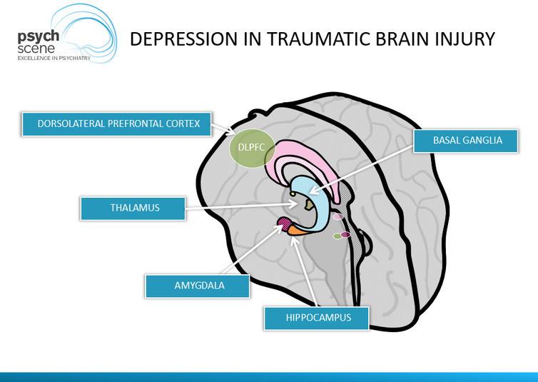 Neuropsychiatry of Traumatic Brain Injury (TBI)-Head ...