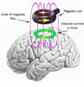 Transcranial Magnetic Stimulation (TMS) in Depression – Case Study
