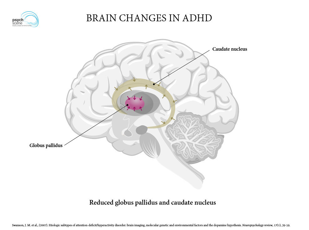 d835fb5abebc Ventral striatum, which is part of the reward pathway, tends to be reduced  in ADHD and there is a negative correlation between ventral striatum and ...