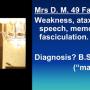 Antiphospholipid Syndrome (APS) Case Files (Stillbirths and Epilepsy) by Prof Graham Hughes